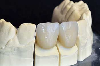 Dental Crowns Columbia