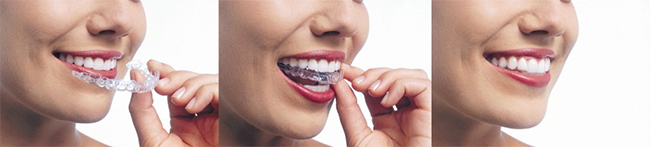 Invisalign near Columbia